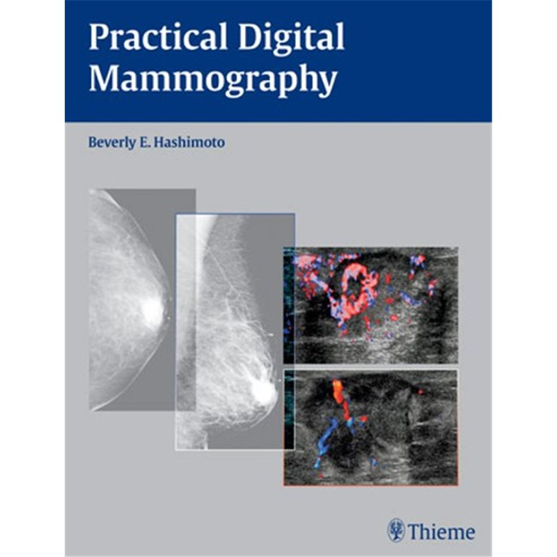 Practical Digital Mammography