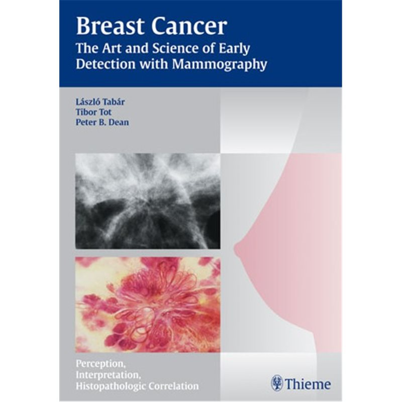 Breast Cancer - The Art and Science of Early Detection with Mammography - Perception, Interpretation, Histopathologic Correlatio