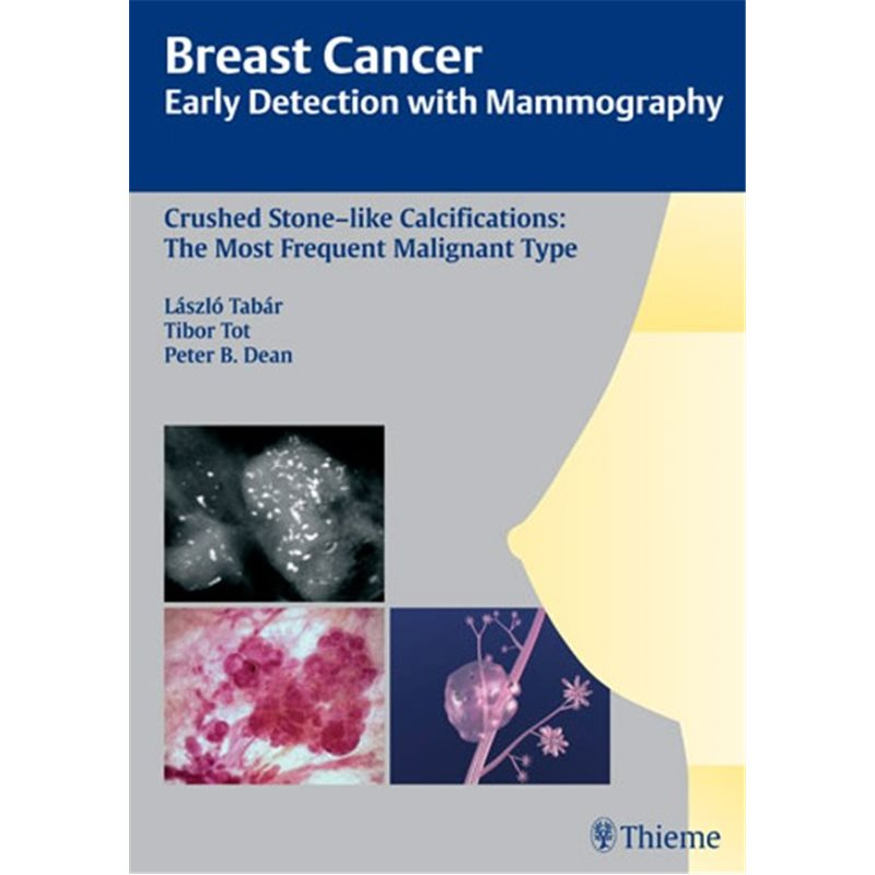Breast Cancer: Early Detection with Mammography - Crushed Stone-like Calcifications: The Most Frequent Malignant Type