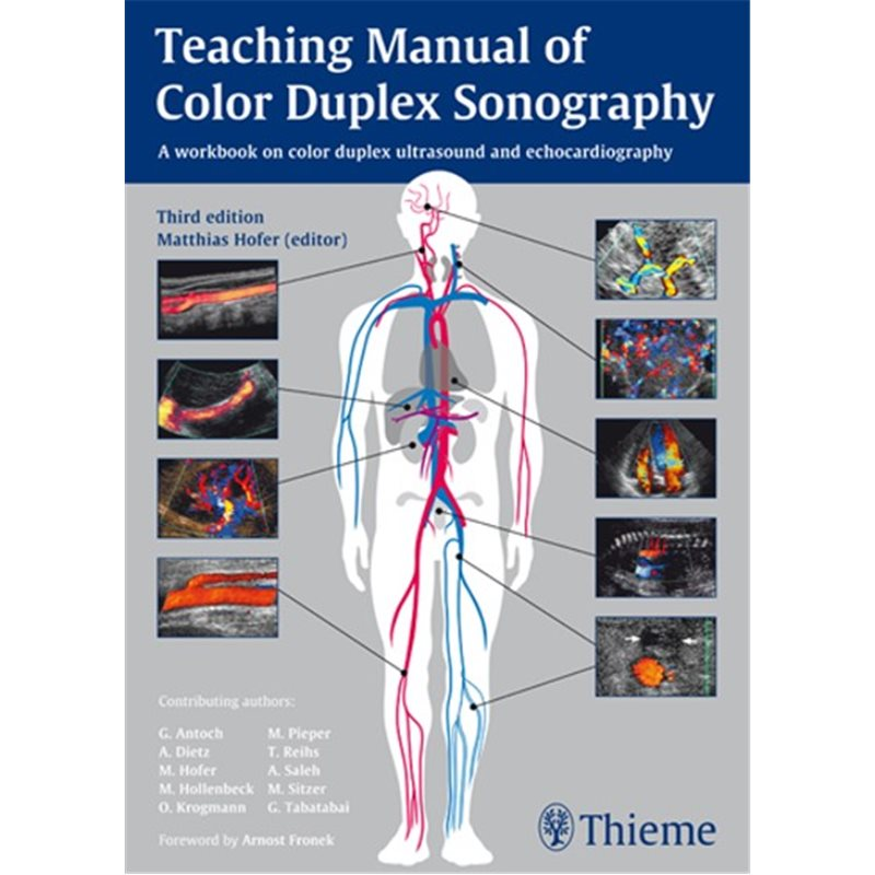 Teaching Manual of Color Duplex Sonography - A workbook on color duplex ultrasound and echocardiography