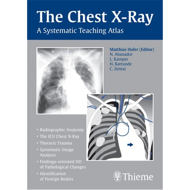 The Chest X-Ray - A Systematic Teaching Atlas