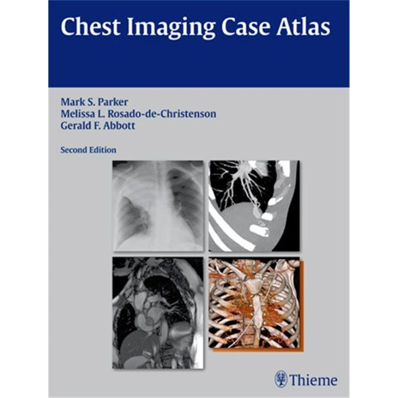 Chest Imaging Case Atlas - 2nd Edition