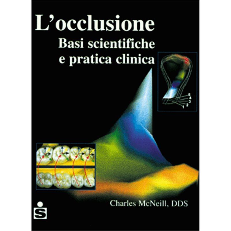 L'occlusione
